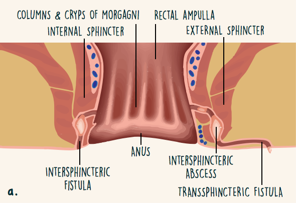 That anal fistula defined necessary try