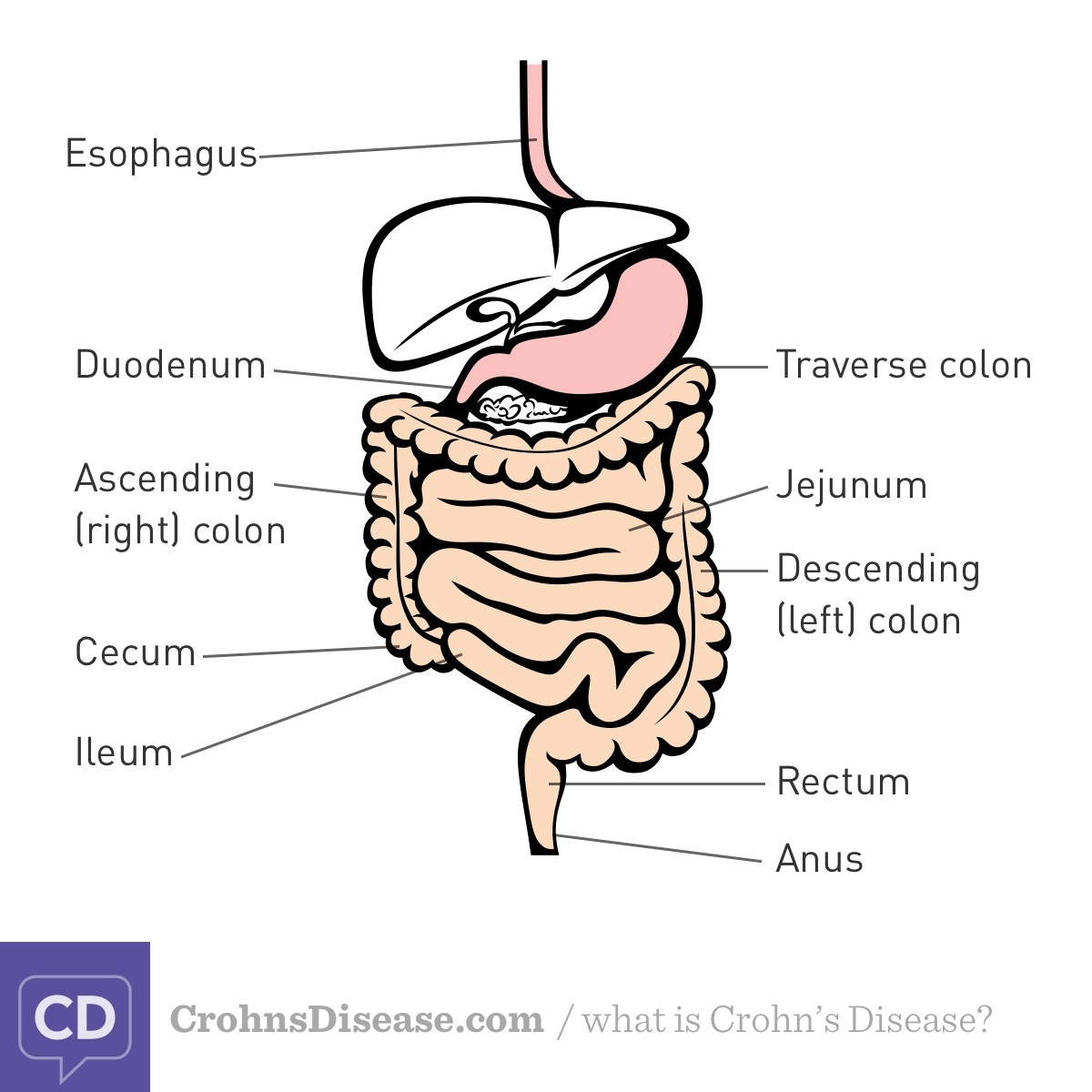 Types Of Crohns Disease Inflammatoryboweldisease