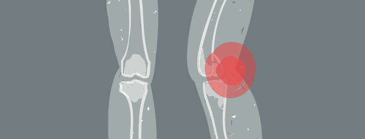 a knee experiencing arthritis and joint pain