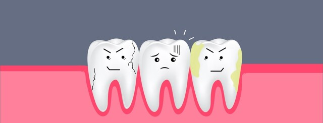 A group of three distraught and decaying teeth.